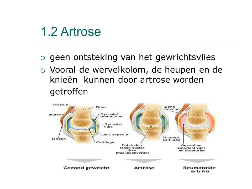 1.2 Artrose geen ontsteking van het gewrichtsvlies