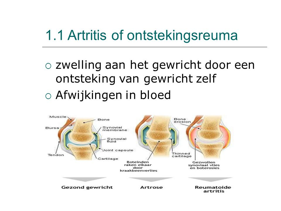 1.1 Artritis of ontstekingsreuma