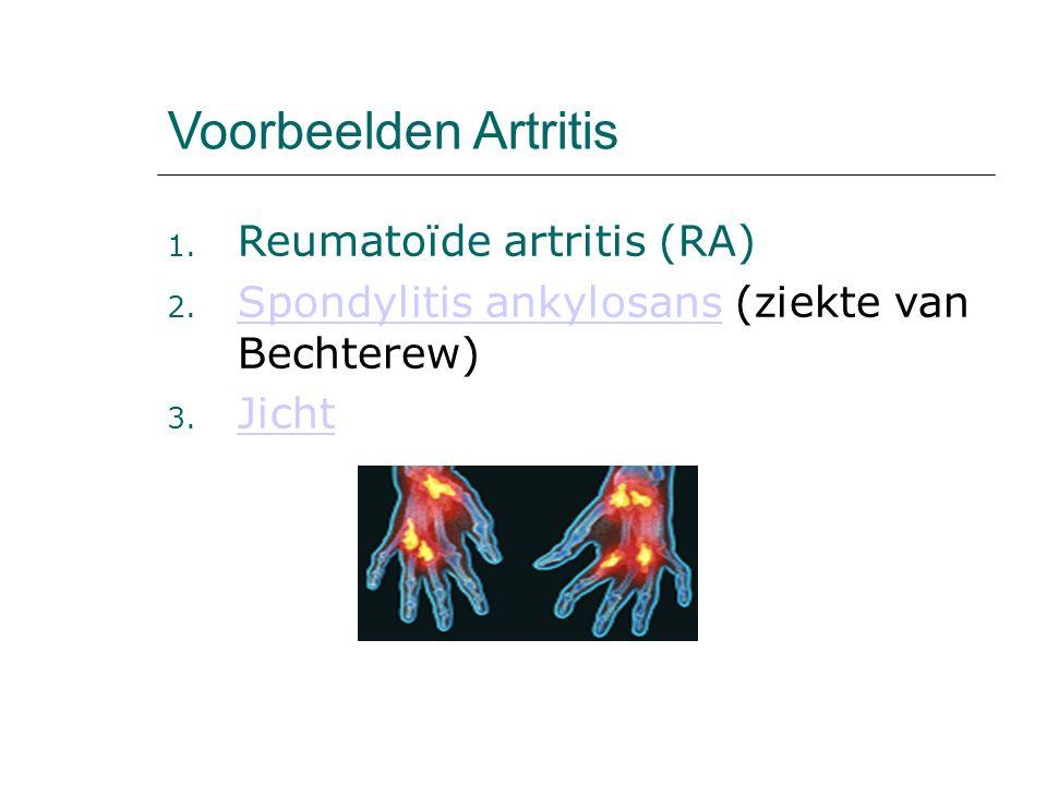 Voorbeelden Artritis Reumatoïde artritis (RA)