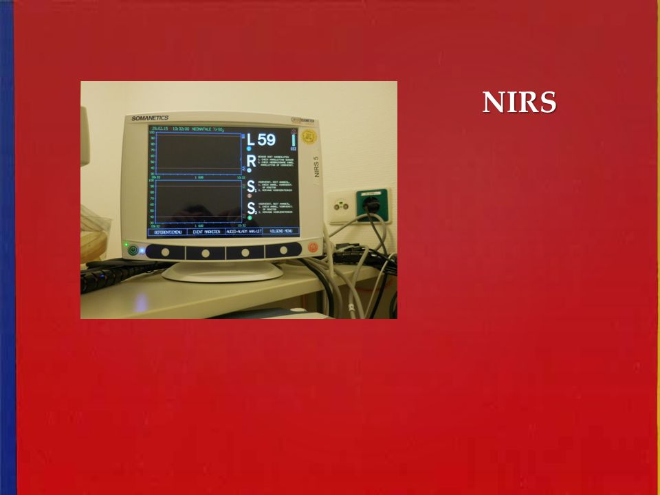 NIRS Afbeelding NIRS near infrared spectoscopy