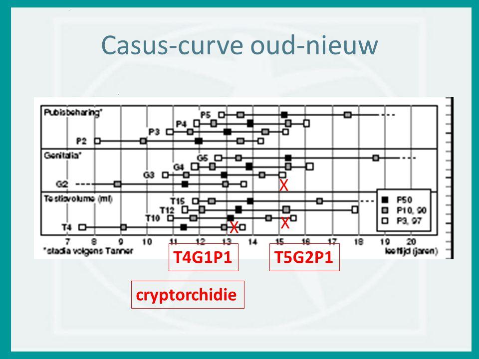 Casus-curve oud-nieuw