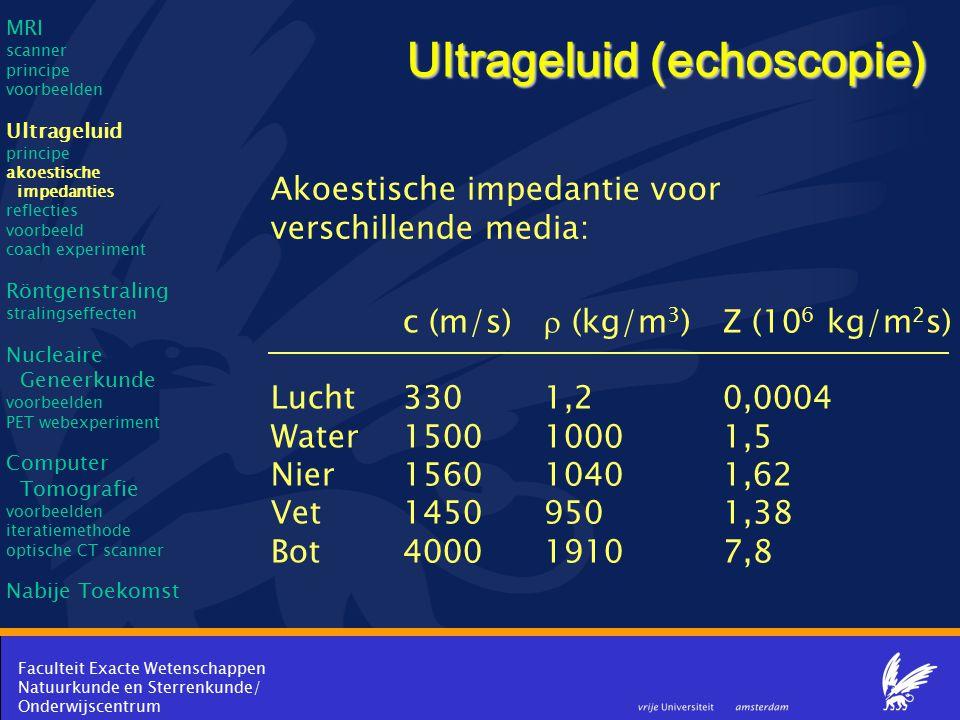 Ultrageluid (echoscopie)