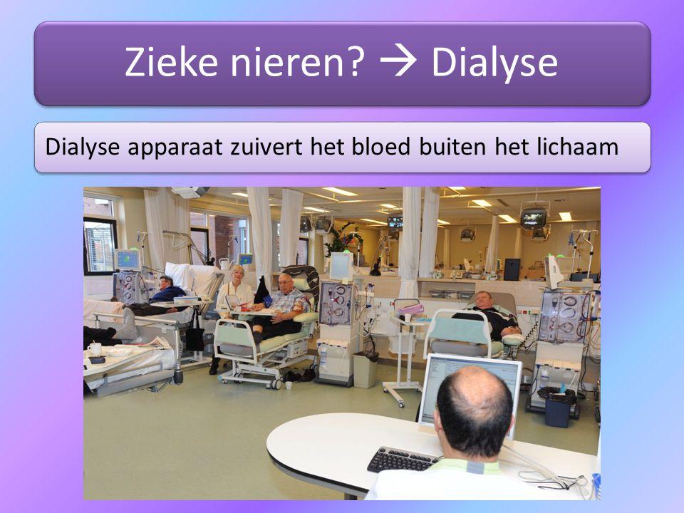 Zieke nieren  Dialyse Dialyse apparaat zuivert het bloed buiten het lichaam
