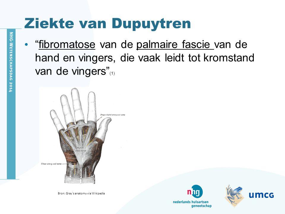 Ziekte van Dupuytren fibromatose van de palmaire fascie van de hand en vingers, die vaak leidt tot kromstand van de vingers (1)