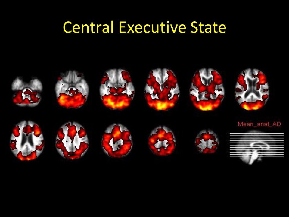 Central Executive State