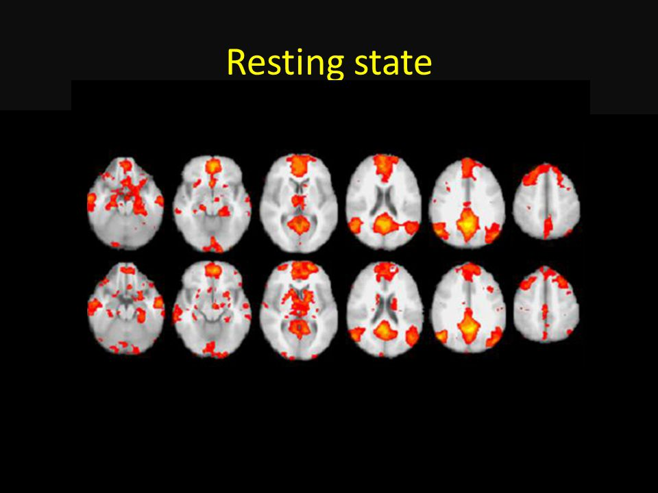 Resting state