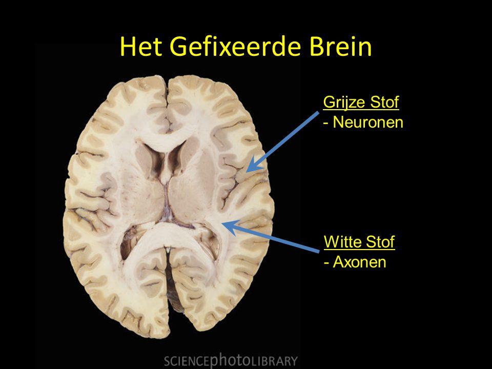 Het Gefixeerde Brein Grijze Stof - Neuronen Witte Stof Axonen