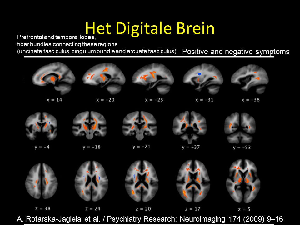 Het Digitale Brein Positive and negative symptoms