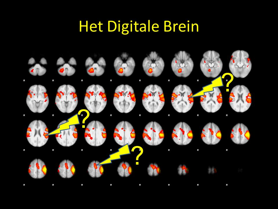 Het Digitale Brein