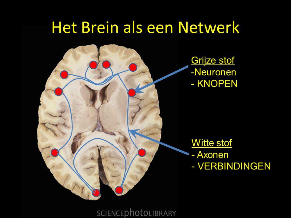 Het Brein als een Netwerk