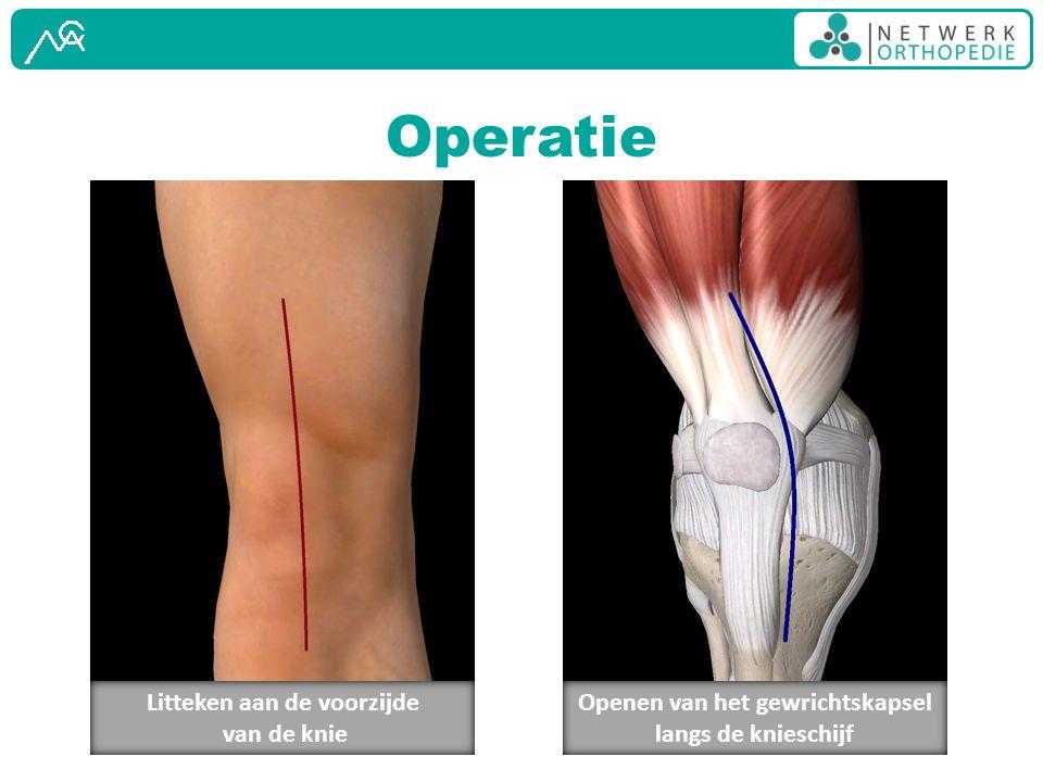 Operatie Litteken aan de voorzijde van de knie