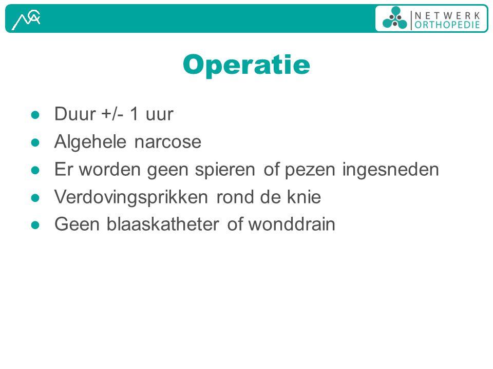 Operatie Duur +/- 1 uur Algehele narcose