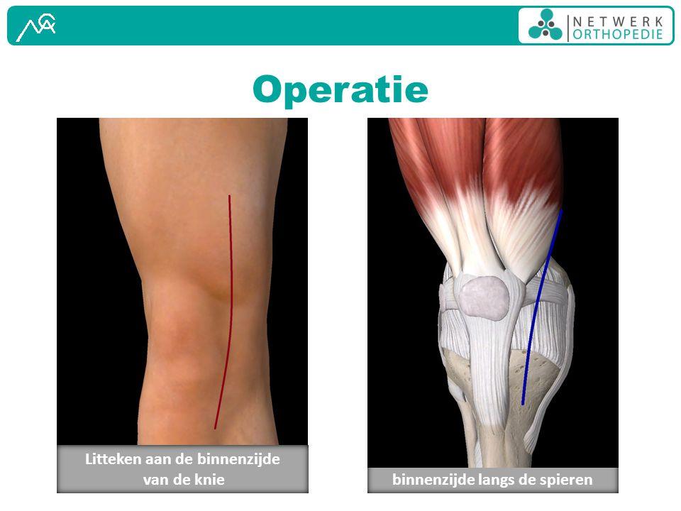 Operatie Litteken aan de binnenzijde van de knie
