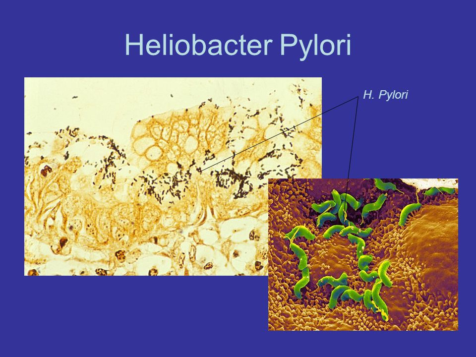 Heliobacter Pylori H. Pylori