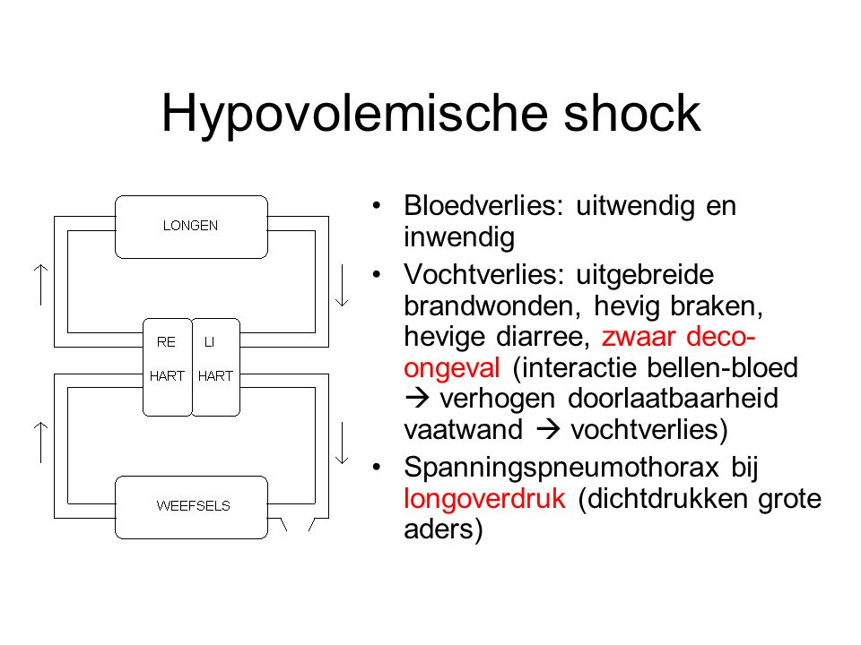 Hypovolemische shock Bloedverlies: uitwendig en inwendig