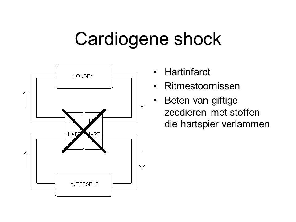 Cardiogene shock Hartinfarct Ritmestoornissen