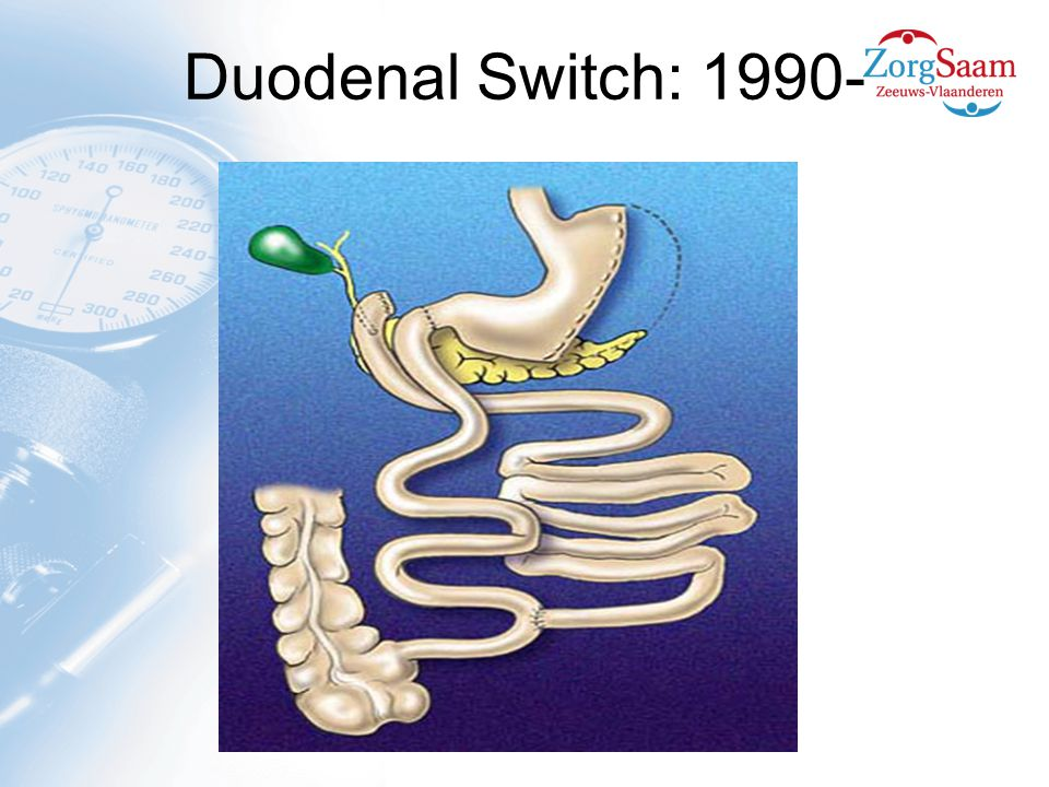 Duodenal Switch: 1990-