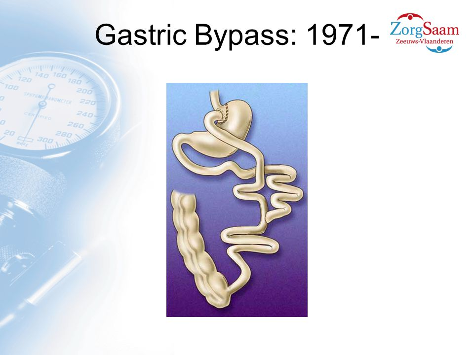 Gastric Bypass: 1971-