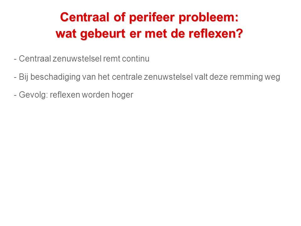 Centraal of perifeer probleem: wat gebeurt er met de reflexen