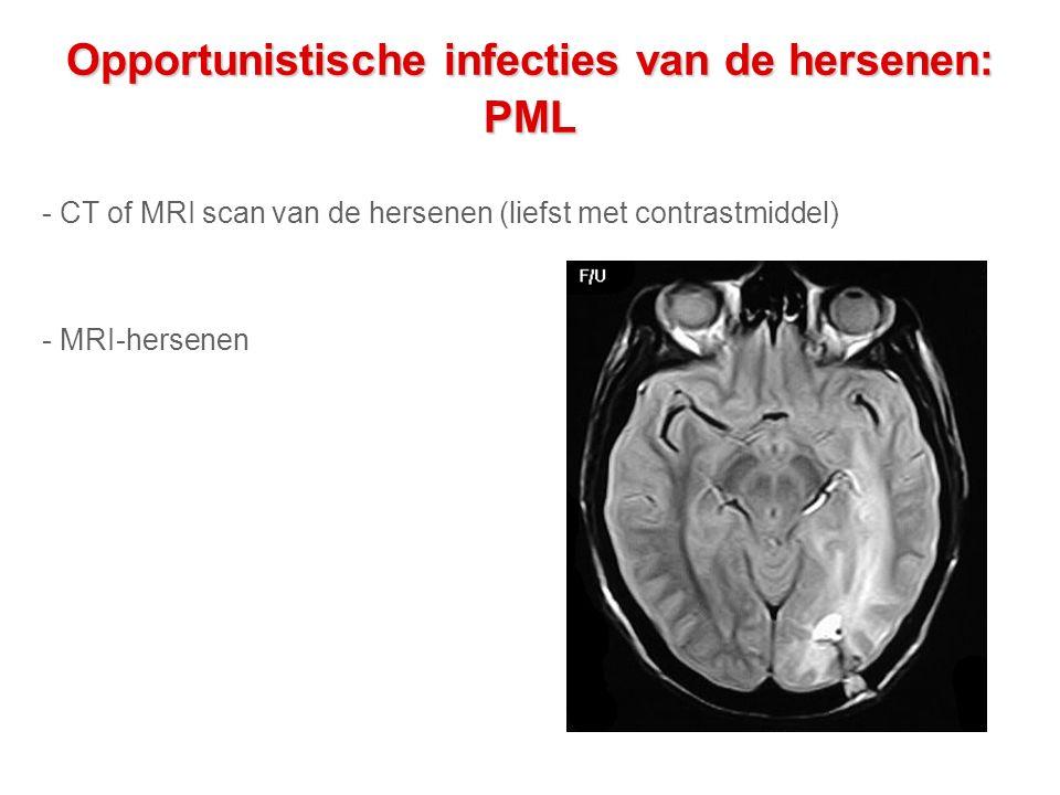 Opportunistische infecties van de hersenen: PML