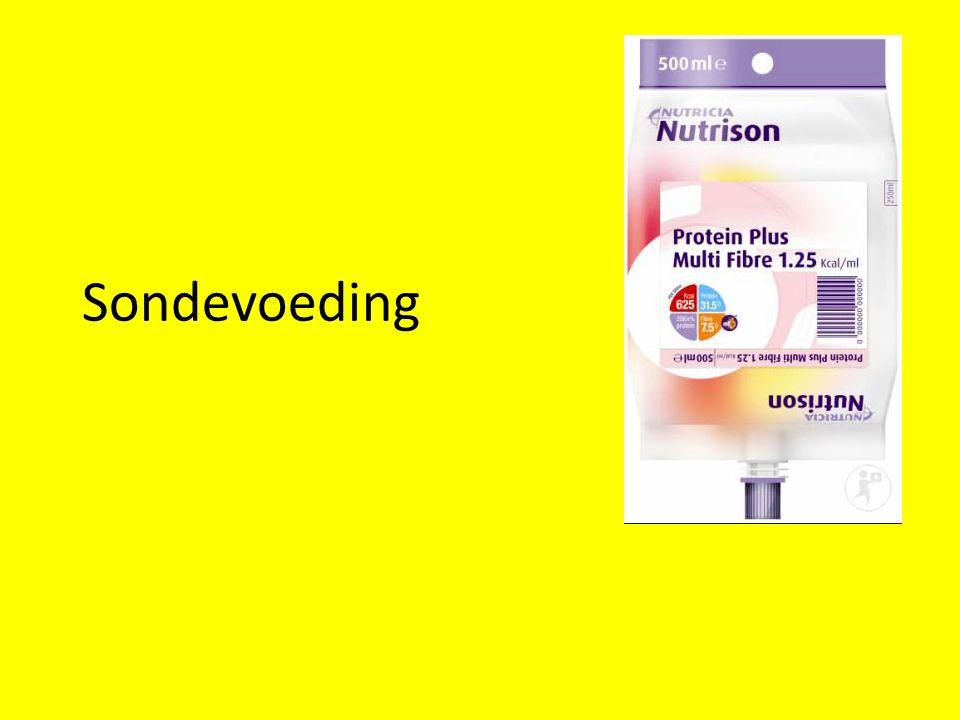 Sondevoeding