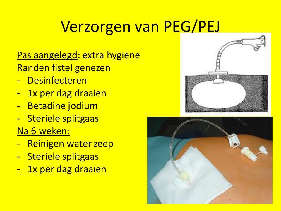 Verzorgen van PEG/PEJ Pas aangelegd: extra hygiëne