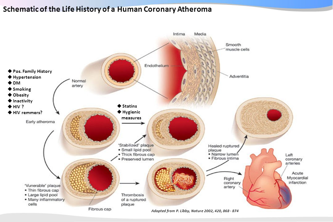 Schematic of the Life History of a Human Coronary Atheroma