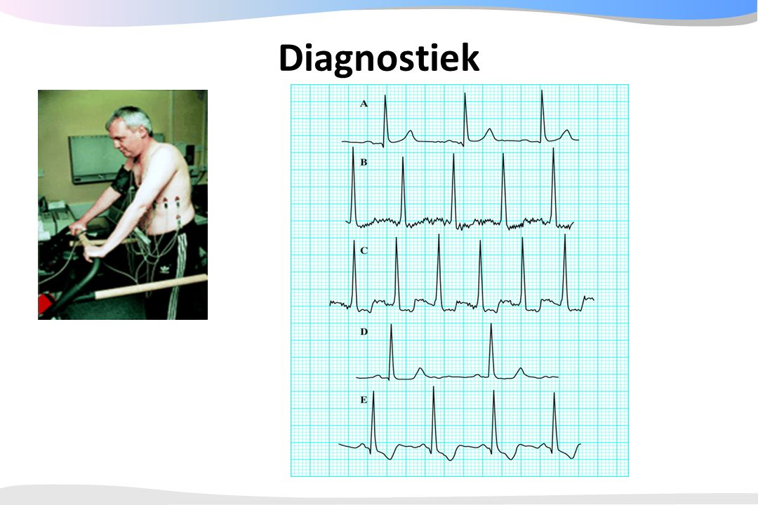 Diagnostiek - Klacht - ECG 