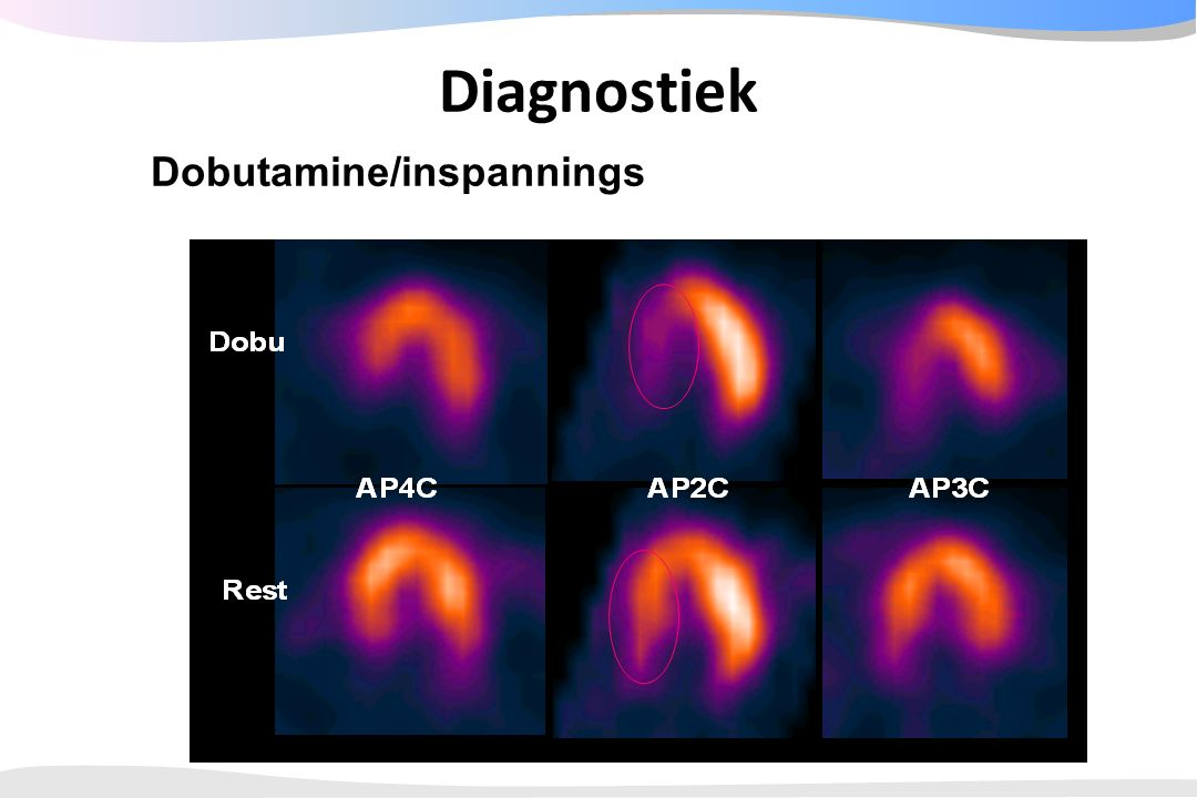 Diagnostiek Dobutamine/inspannings MIBI