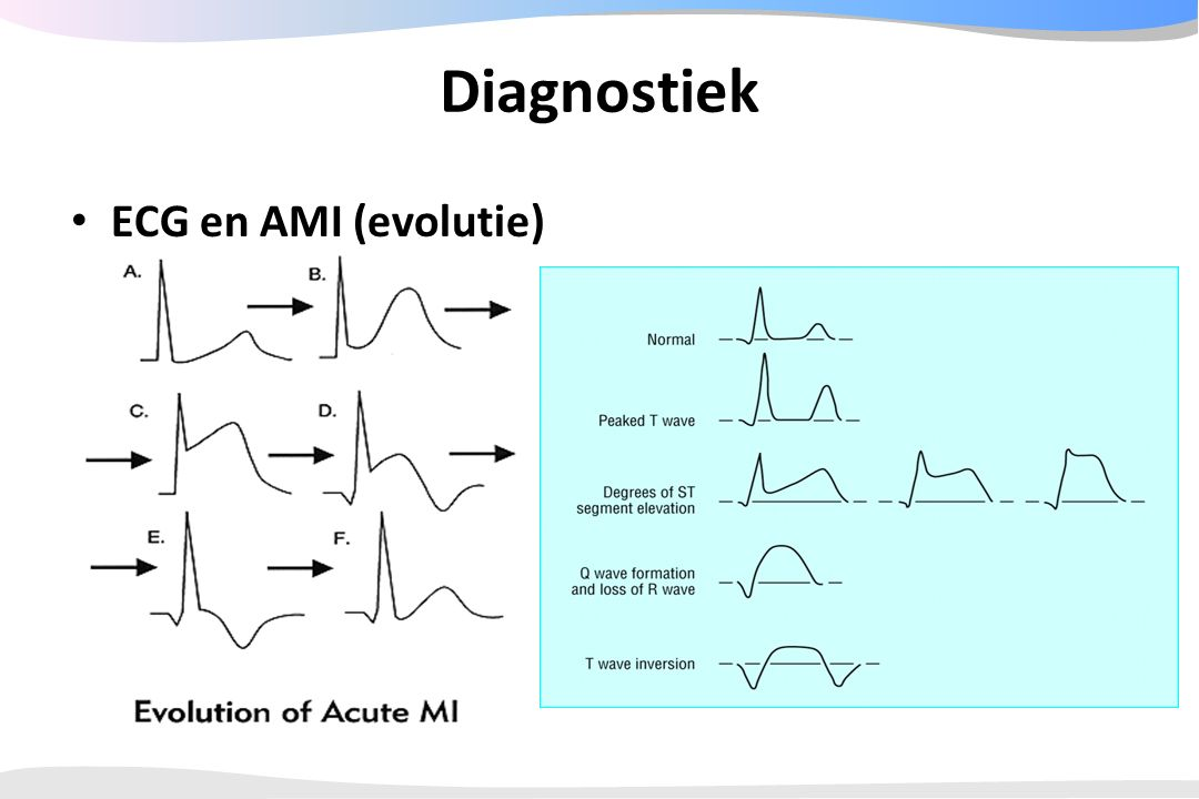 Diagnostiek ECG en AMI (evolutie)