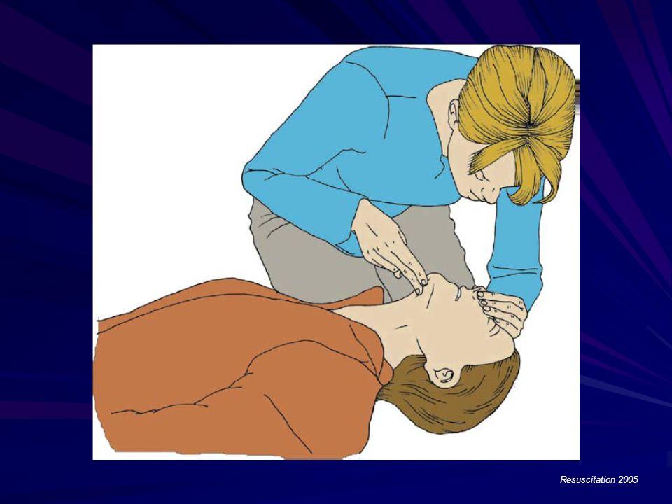 Resuscitation 2005