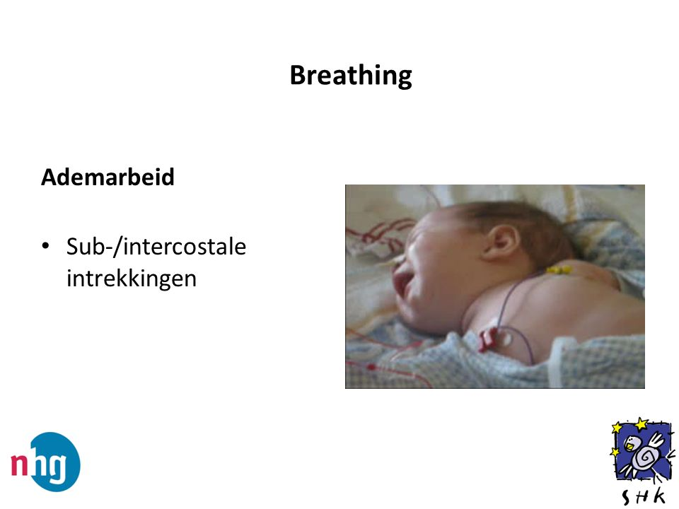 Breathing Ademarbeid Sub-/intercostale intrekkingen