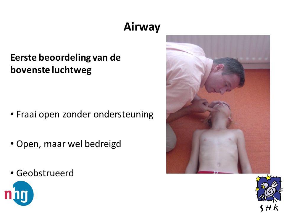 Airway Eerste beoordeling van de bovenste luchtweg
