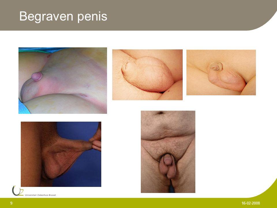 Begraven penis 16-02-2008