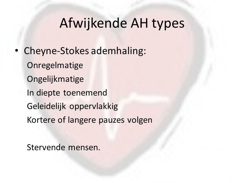Afwijkende AH types Cheyne-Stokes ademhaling: Onregelmatige