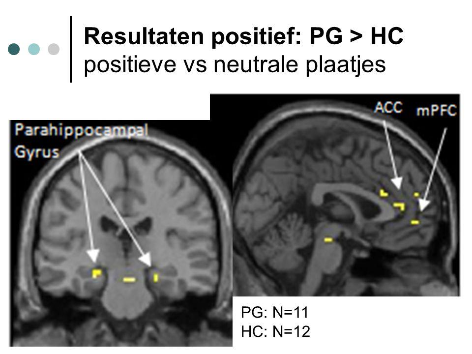Resultaten positief: PG > HC positieve vs neutrale plaatjes