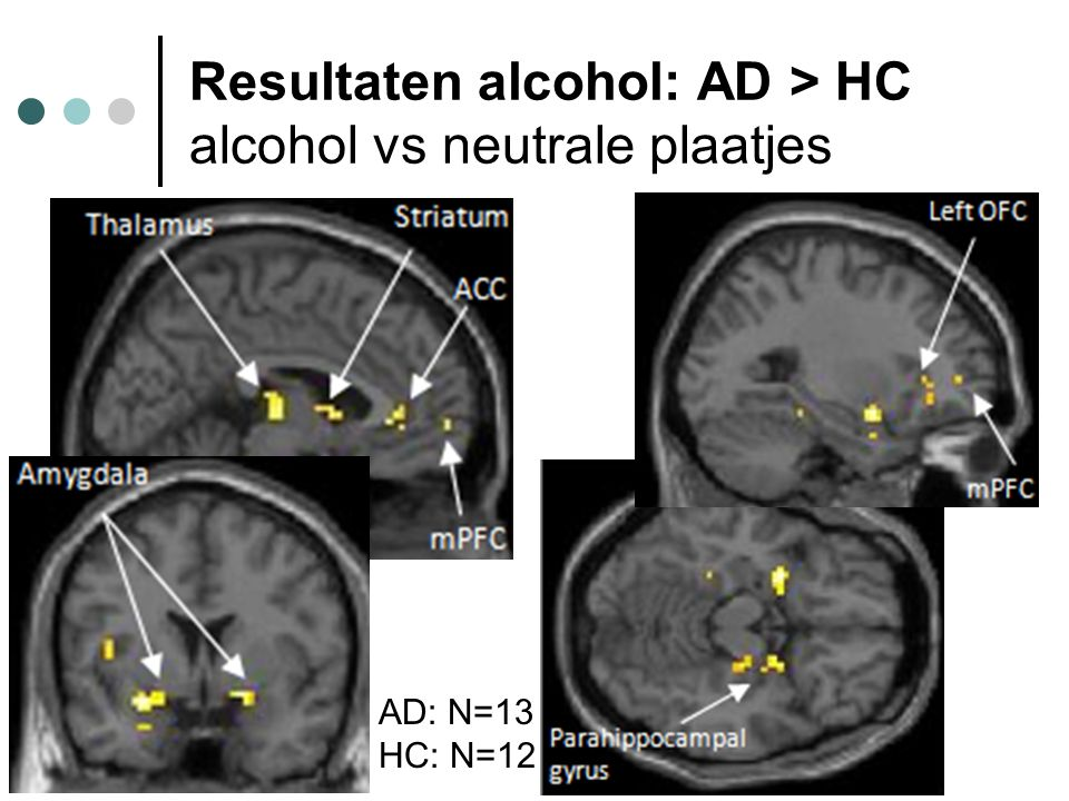 Resultaten alcohol: AD > HC alcohol vs neutrale plaatjes