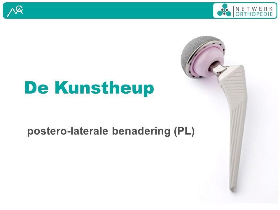 De Kunstheup postero-laterale benadering (PL)