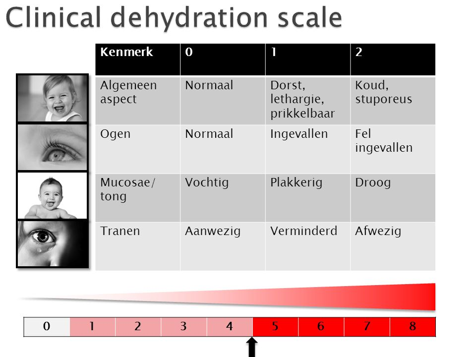 Clinical dehydration scale