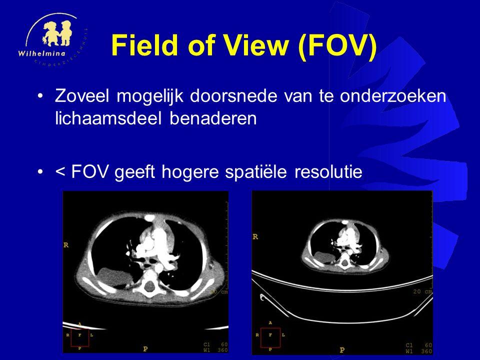 Field of View (FOV) Zoveel mogelijk doorsnede van te onderzoeken lichaamsdeel benaderen.