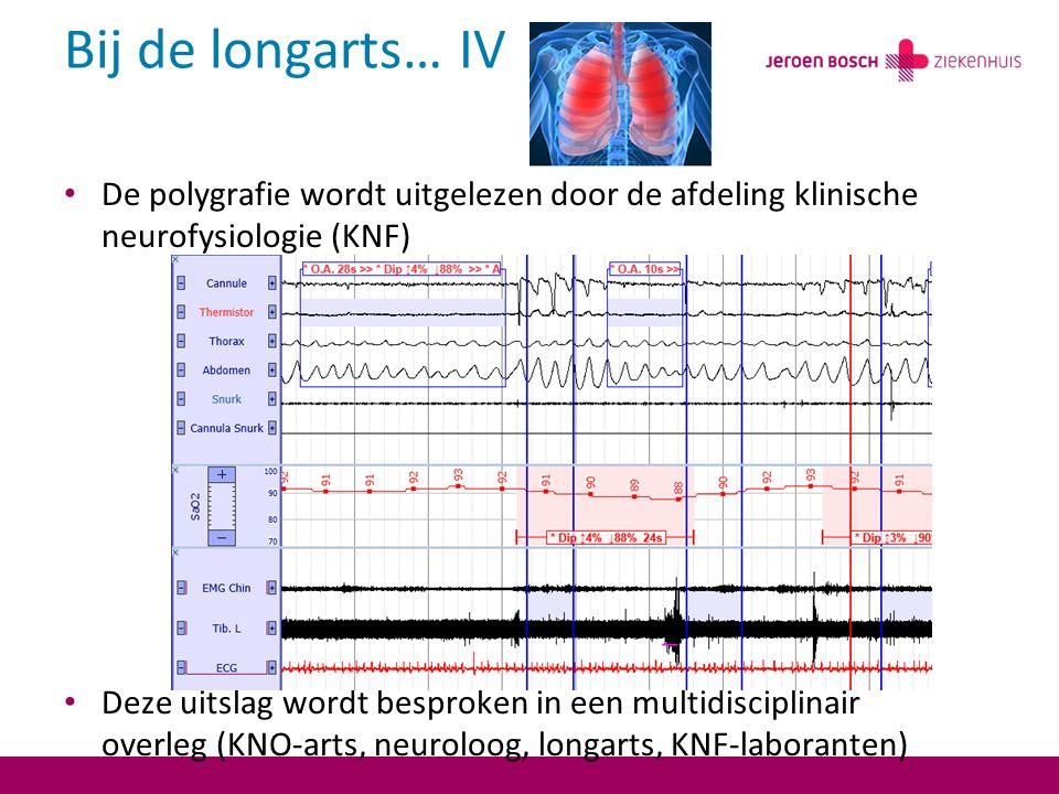 Bij de longarts… IV De polygrafie wordt uitgelezen door de afdeling klinische neurofysiologie (KNF)