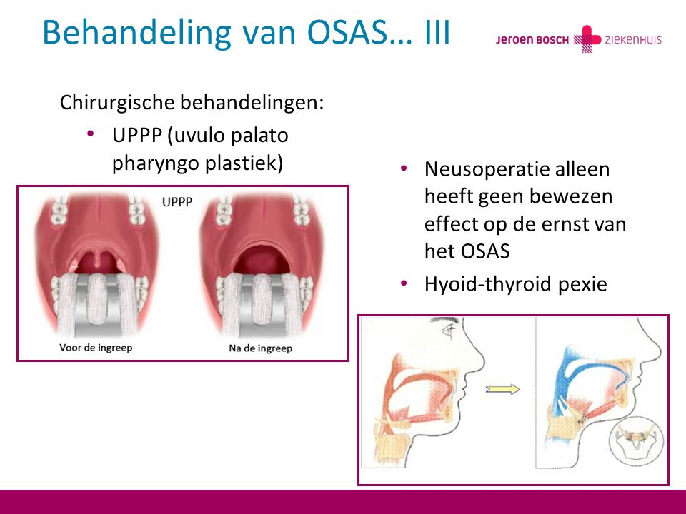 Behandeling van OSAS… III