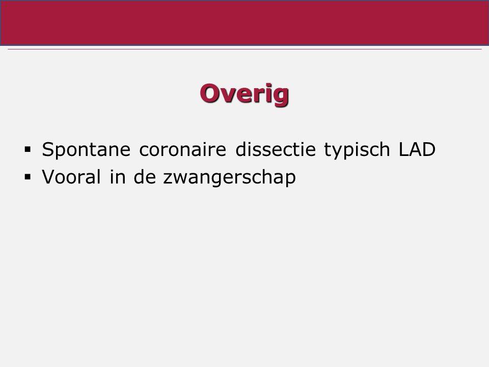 Overig Spontane coronaire dissectie typisch LAD