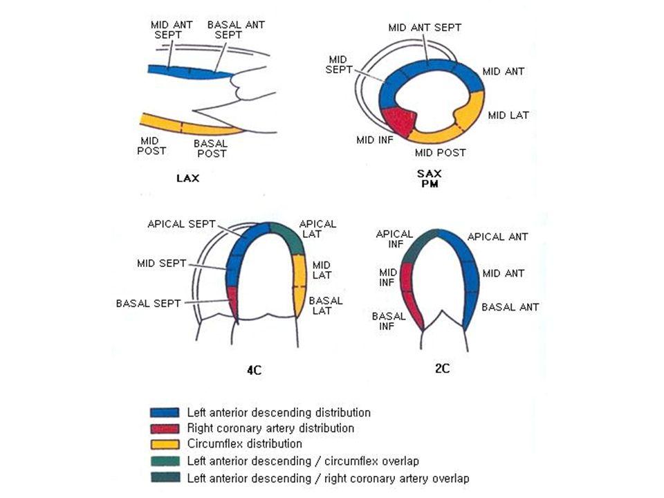 RWBS Visueel, WMSI (stroomgebieden) Nonischemisch: geleiding (LBTB, PM, PVC, WPW), constrictie, tardokinesis/vroege relaxatie.