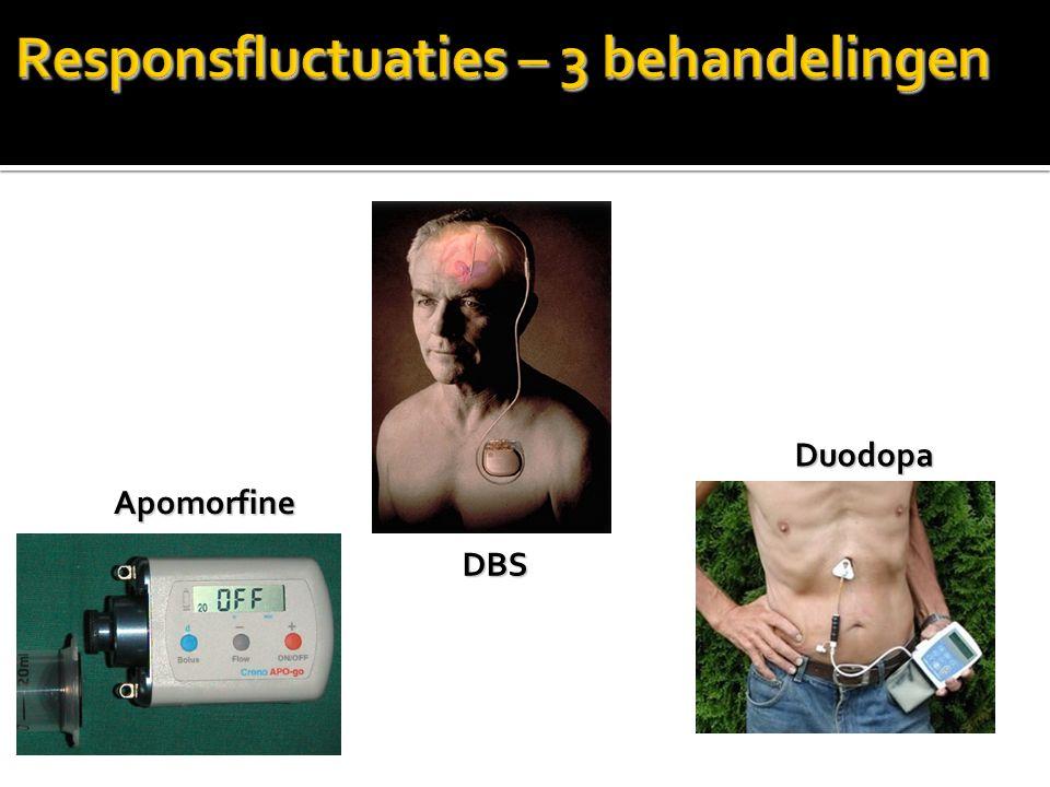 Responsfluctuaties – 3 behandelingen