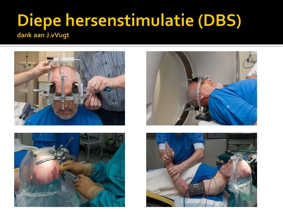 Diepe hersenstimulatie (DBS) dank aan J.vVugt