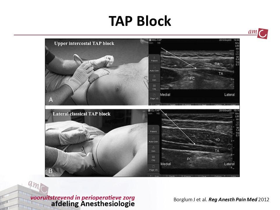 TAP Block Borglum J et al. Reg Anesth Pain Med 2012