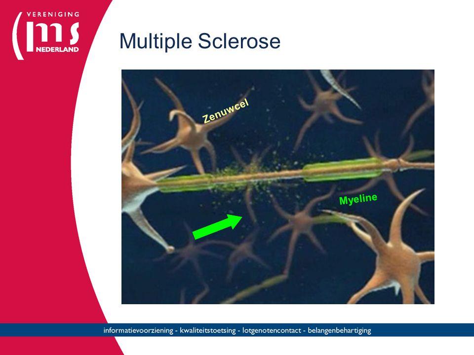 Multiple Sclerose Zenuwcel Myeline
