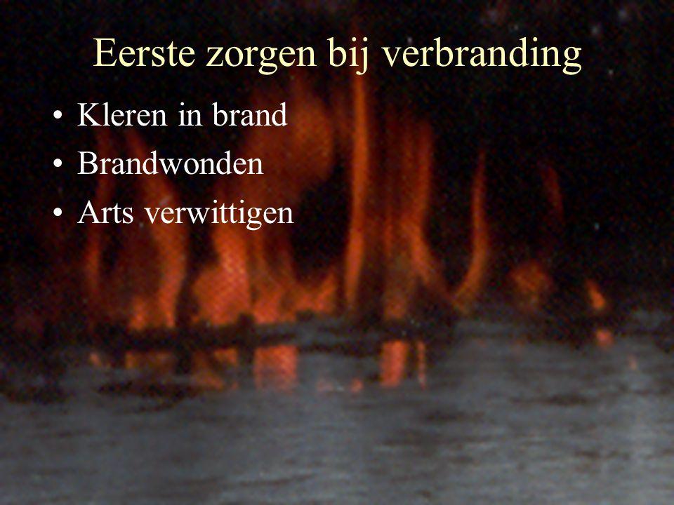 Eerste zorgen bij verbranding