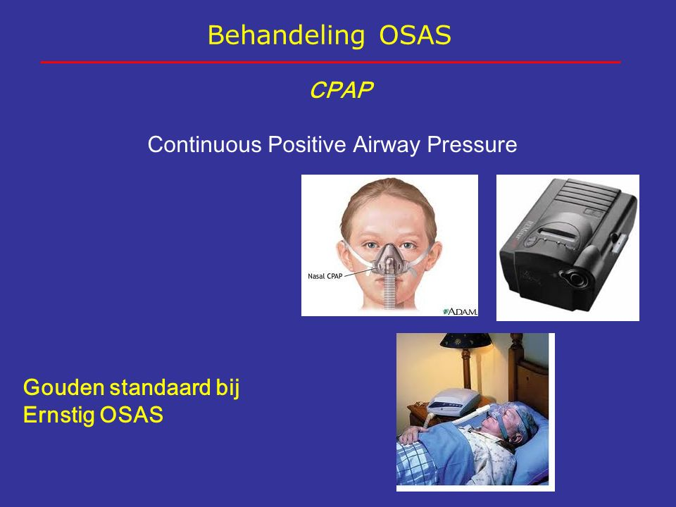 Behandeling OSAS CPAP Continuous Positive Airway Pressure